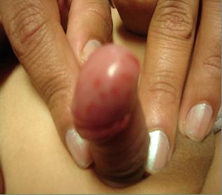 lesiones en el glande imagenes